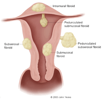 How To Treat Fibroids Naturally Free
